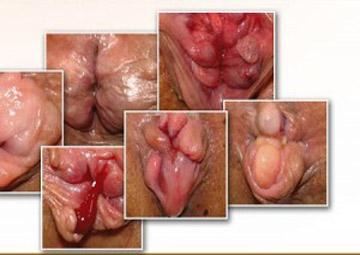 Hình ảnh bệnh trĩ ngoại độ 4