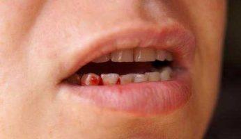 Bị chảy máu chân răng không nên chủ quan